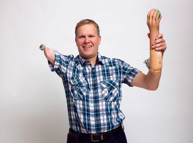 Магнус N — пациент, потерявший руку, но получивший умный протез, который полностью подчиняется его воле (фото Ortiz Catalan).