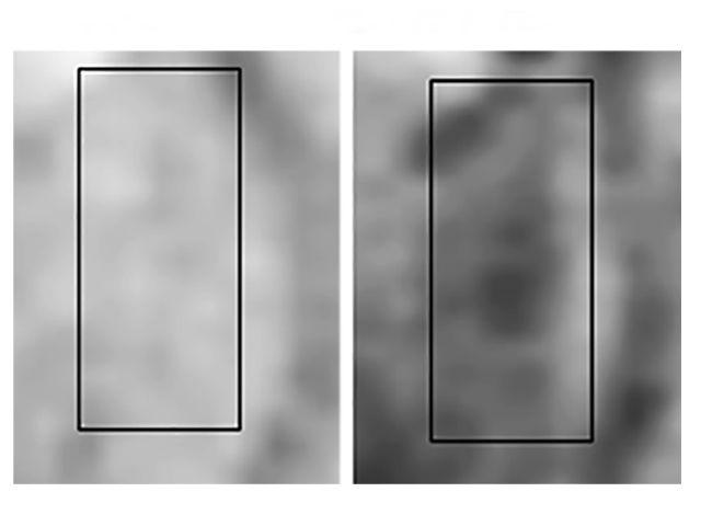 Тёмные пятна на МРТ-снимке животного с ранней стадией болезни Альцгеймера (слева) и их отсутствие у здорового животного (справа) (иллюстрация Viola et al., Nature Nanotechnology, 2014).