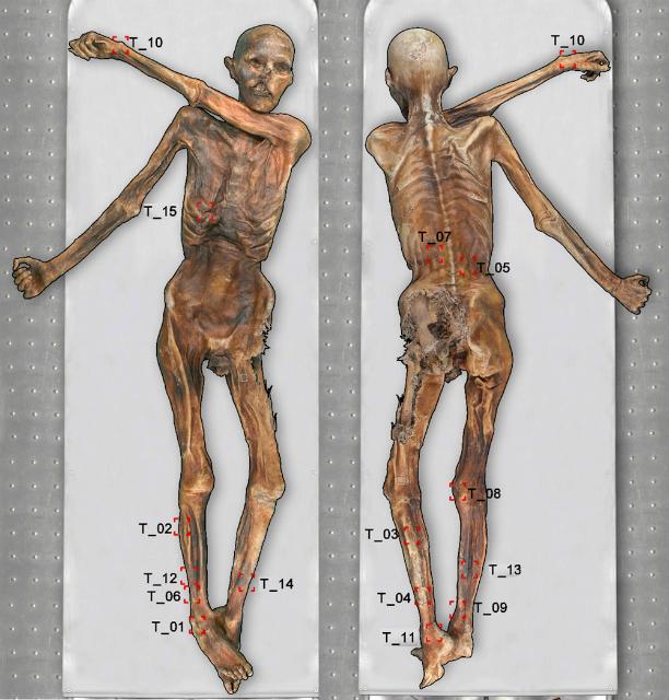Схема тела Этци с указанием его татуировок. Данное исследование выявило татуировку 15 на правой стороне грудной клетки мумии (фото Marco Samadelli).