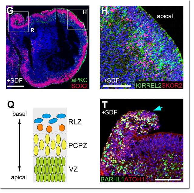 Развитие структурных клеток разных областей мозга (фото RIKEN).