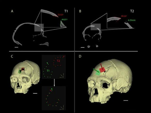 Визуальная реконструкция черепа позволила установить, что оба удара были сделаны одним и тем же предметом с примерно одинаковой силой (иллюстрация Nohemi Sala et al.).